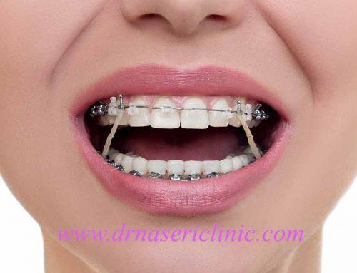 السن المناسب لعلاج تقويم الأسنان