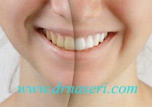 بلیچینگ دندان