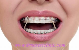 best age for orthodontic treatment