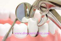 الأسنان بسيط طريقة استخراج