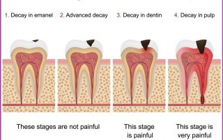 health risks of tooth decay