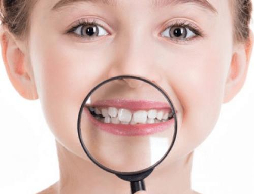 اهمیت مراقبت از دندانهای شیری برای داشتن دندانهای دایمی بهتر