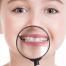 مراقبت از دندانهای شیری